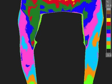 Infrared Thermographic Image
