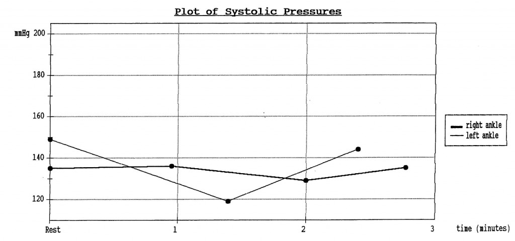Plot of Systolic Pressures