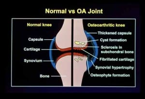 Rheumatoid Arthritis treatment in Spartanburg and Anderson, SC