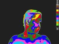 Treatment for neck pain, blurred vision, nausea, vertigo, and tinnitus