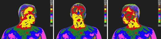 Facial Dystrophy Syndrome