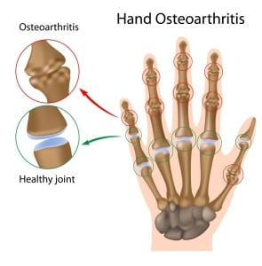 Osteoarthritis is a degenerative joint disease than can affect any joint in your body including your hands