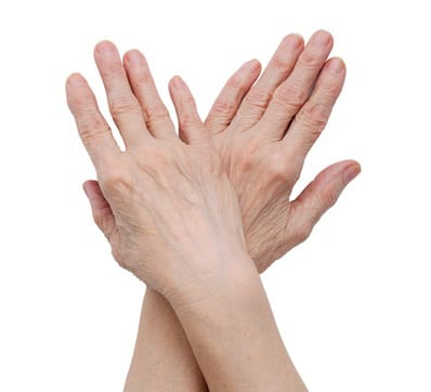 We offer osteoarthritis treatment to our Greenville, Spartanburg, and Anderson area patients