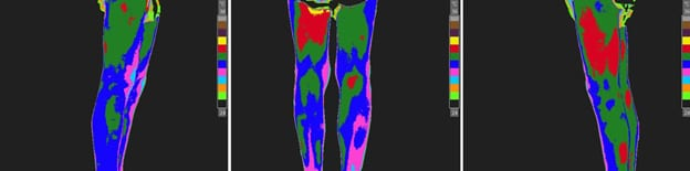 Right Lower Extremity RSD