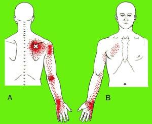 non-cardiac chest wall pain - piedmont physical medicine, Cephalic Vein