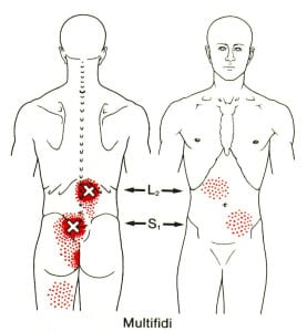 Possible Locations of Abdominal Pain