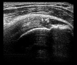 Ultrasound Calcified Subscapularis Tendon