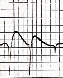 EMG Diagram