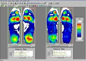 Gait Analysis Computer Display