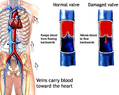 Valve Comparison Diagram