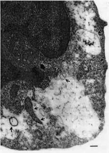 Pleomorphs within Phagocytes