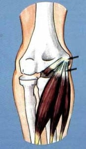We offer treatment for elbow ligament injury
