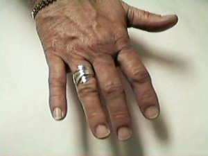 RSD Hand with Tremor