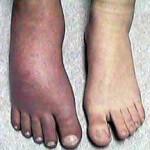 RSD Swelling in the Feet