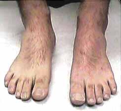 JI Feet After 4 Months Minocin Treatment