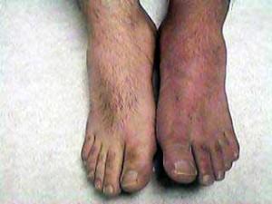 JI Feet Before Minocin Treatment