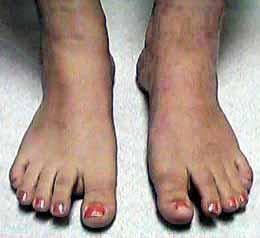 MH Feet After 4 Months Treatment With Minocin