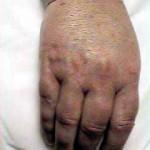 RSD Hand