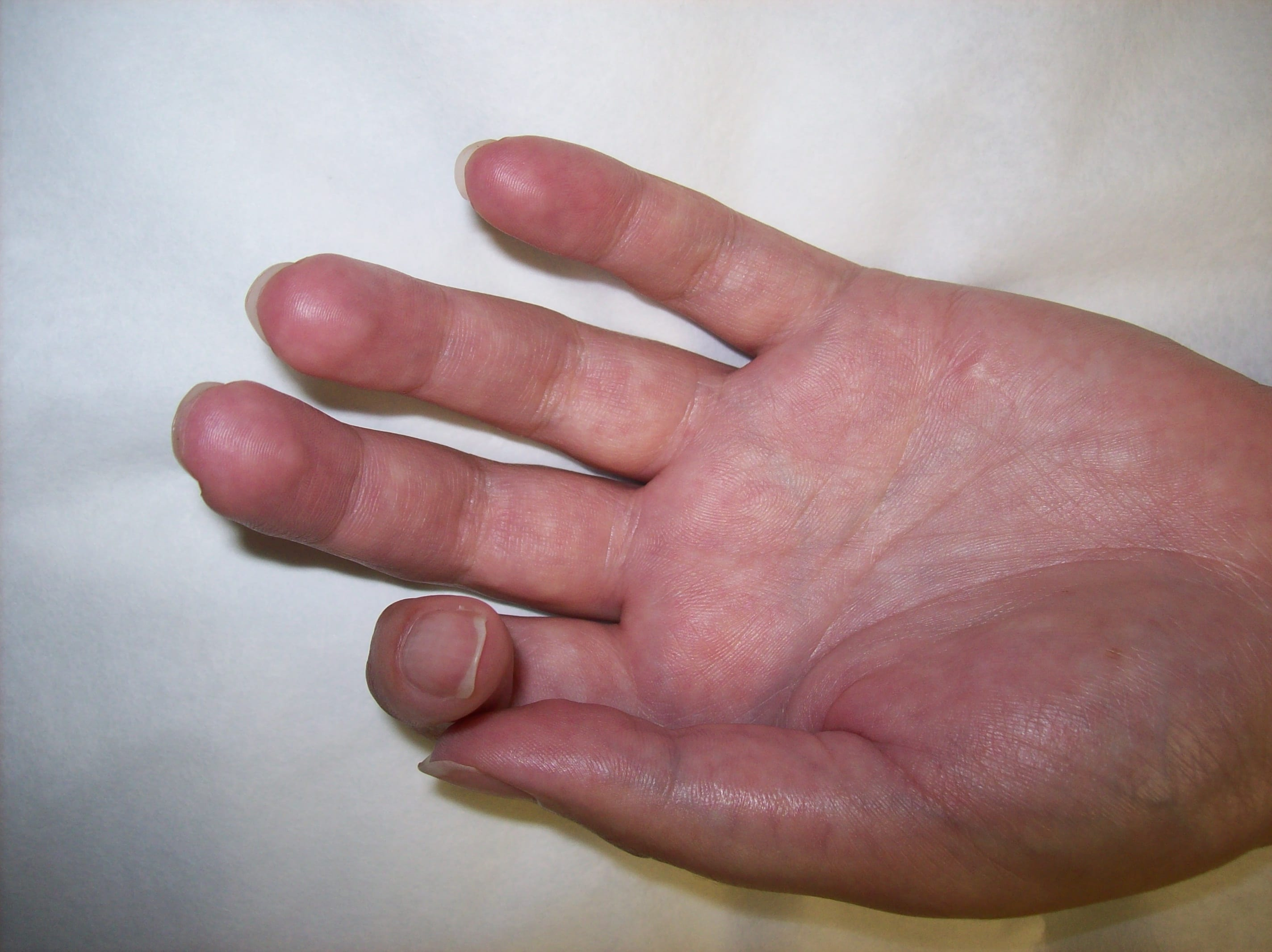 Rsd Crps Skin Changes Respond To Stem Cell Piedmont