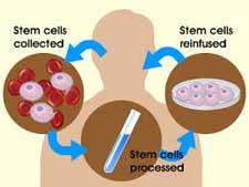 Stem Cell Process1