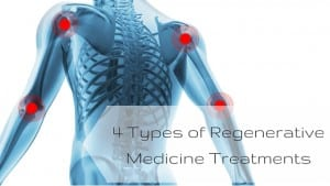 3 Types of Regenerative Medicine Treatments-2