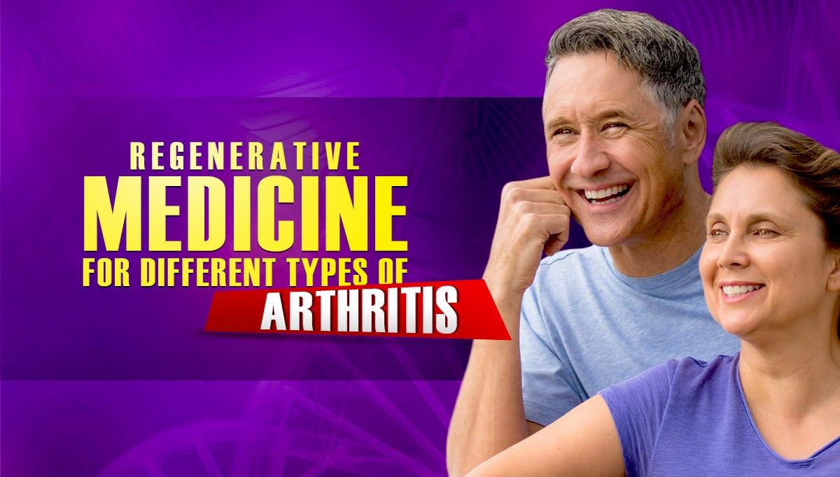 Regenerative Medicine for Different Types of Arthritis
