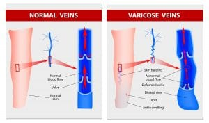 Venous Insufficiency at Piedmont PMR