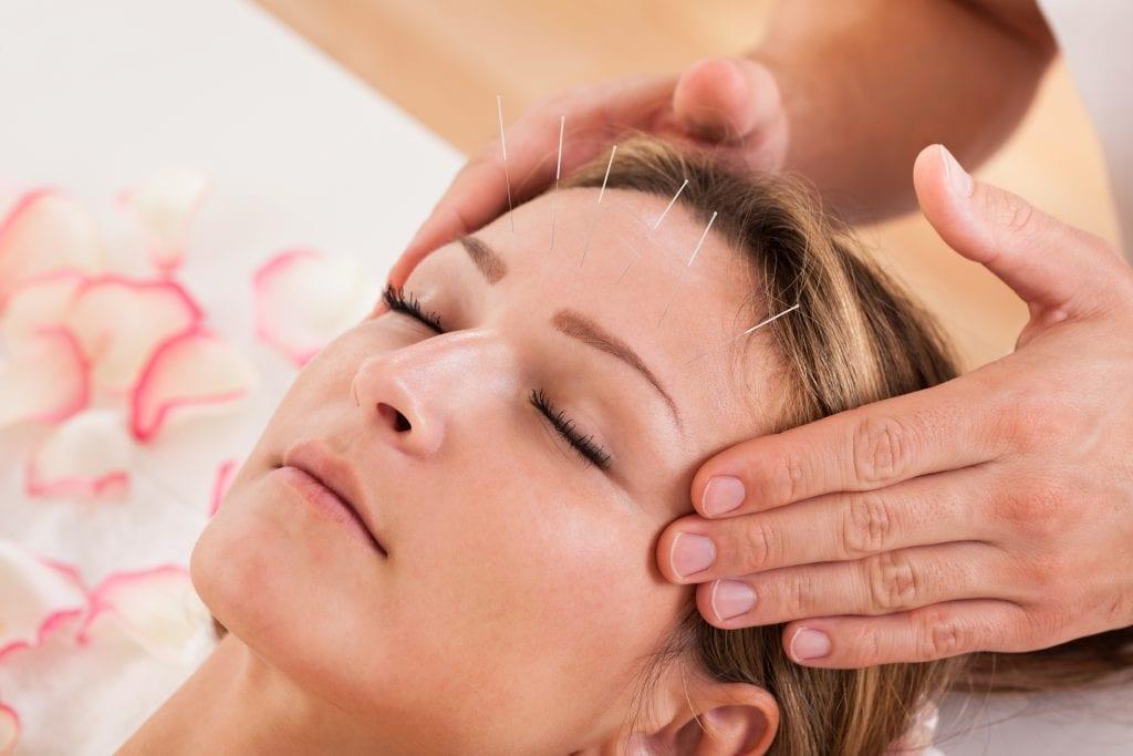 Acupuncture Piedmont PMR