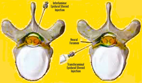 Transforaminal Epidural Steroid Injections For Low Back