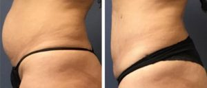 Laser Liposuction with BeatiFill