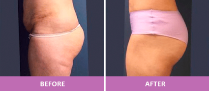 Before and After Fat Transfer with BeautiFill